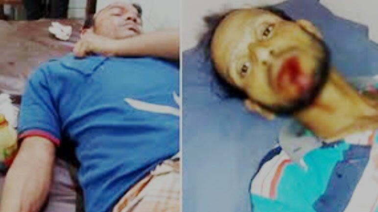 10 injured in armed attack in Satkania